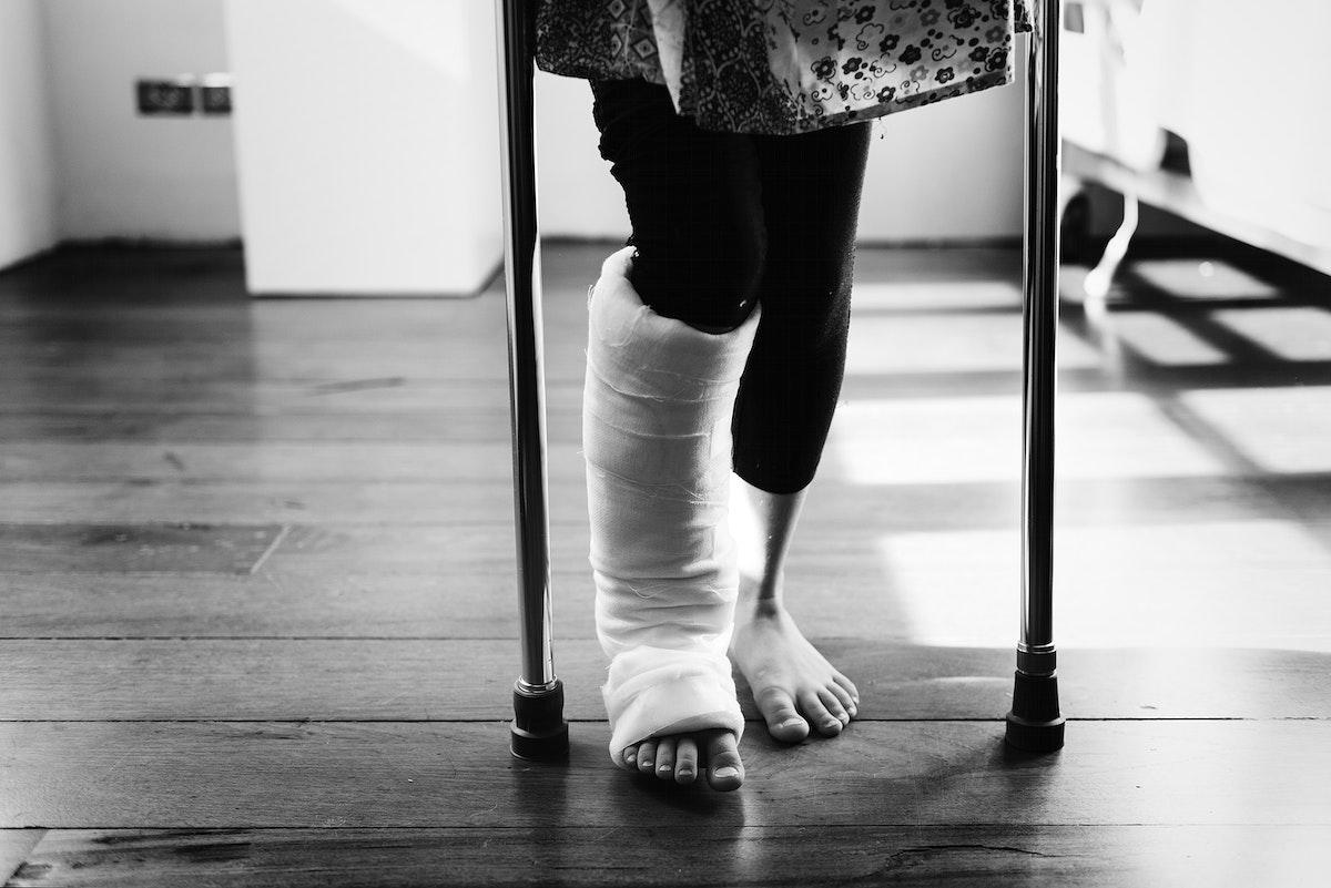 Young girl with a broken leg