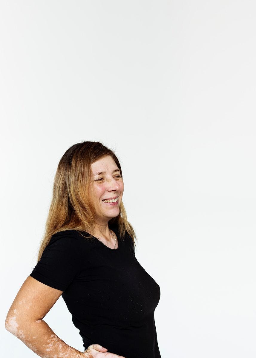 Woman with hypopigmentation